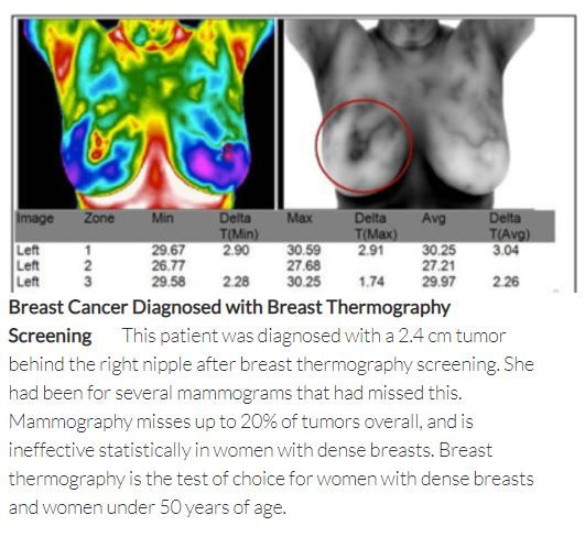 Thermography Breast Cancer Screening